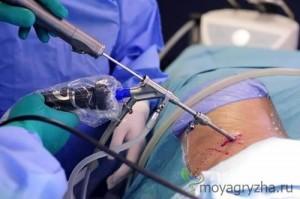 Лечение лазерной иглой