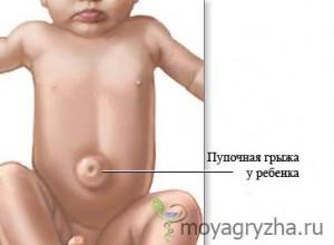 Фото пупочной грыжи у ребенка