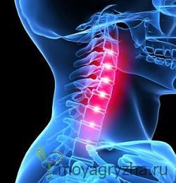 Резкая боль в области шее