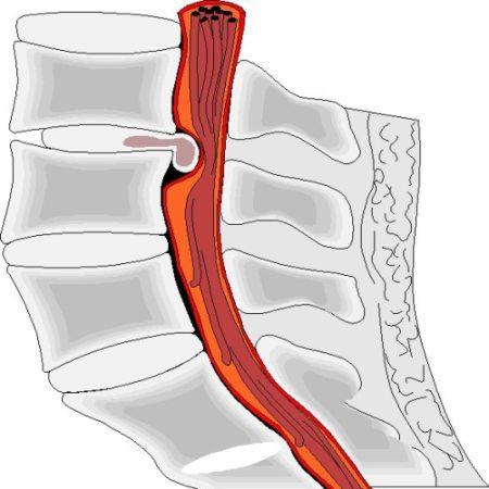 Дорсальная протрузия
