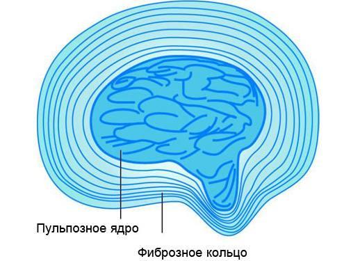 Пульпозное ядро
