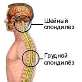 грудной и шейный спондилез