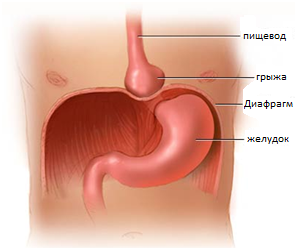 gryzha-pishhevodnogo-otverstiya-diafragmy