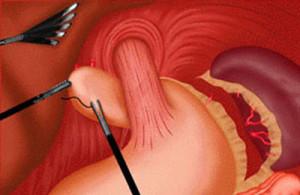 Laparoskopicheskaja-fundoplikacija