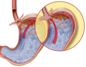 образуются в пищеводном отверствии диафрагмы