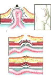 ventralnaja-gryzha