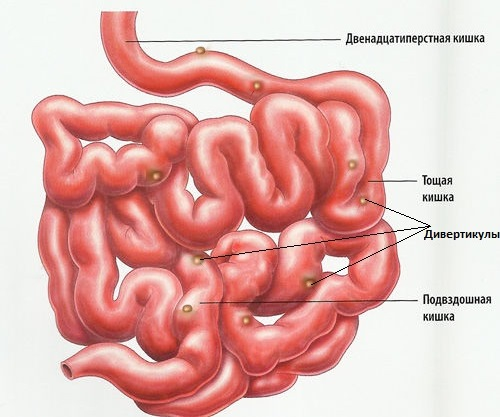 Дивертикулез тонкого кишечника