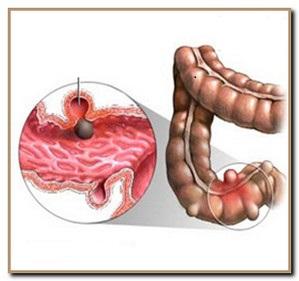 образования в кишечнике