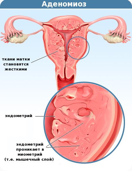 Заболевание аденомиоз матки