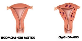 Форма эндометриоза