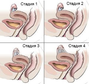 Развитие аденомиоза тела матки
