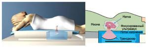Проведение ФУЗ-абляции миомы матки