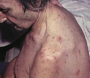 Васильева а болезни печени самые эффективные методы лечения