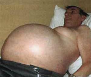 Жировой гепатоз лечение гепатоза печени