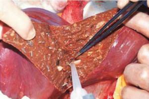 Меры по лечению цирроза печени