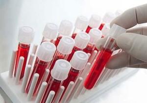 Показатели биохимии крови