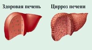 Можно ли жить с циррозом печени