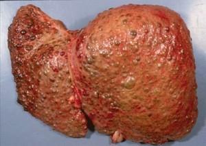 Декомпенсированный цирроз печени: симптомы