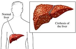 Патогенез цирроза печени