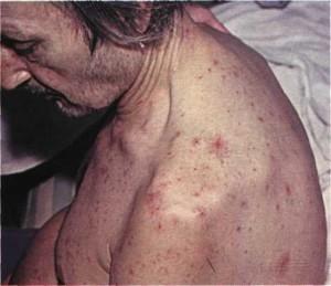 Симптомы и показатели цирроза