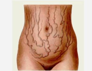 Признаки декомпенсированного цирроза печени