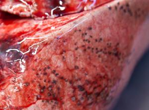 Роль кровотечений при циррозе печени