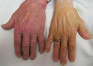 Симптомы первичного билиарного цирроза