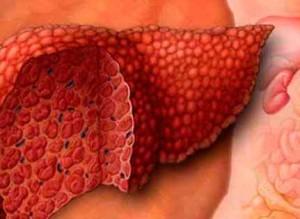Кардиальный цирроз печени, его признаки и особенности