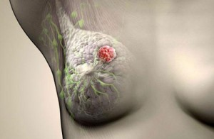 Лечение рака груди народными средствами