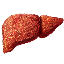 Мелкоузловой цирроз печени, его особенности