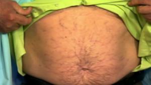 Клиническая картина при субкомпенсированном циррозе печени