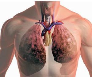 Народные методы, применяемые для лечения рака легких