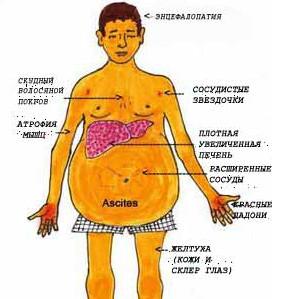 Основные признаки цирроза печени
