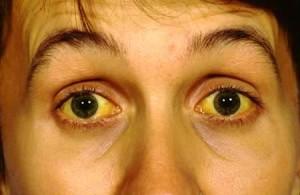 Желтуха - признак мелкоузлового цирроза печени